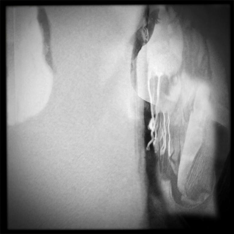 Sciarpa/collo - Cervicale ed ernie cervicali. In ogni dove, sempre con me. Anche d'estate, sempre.